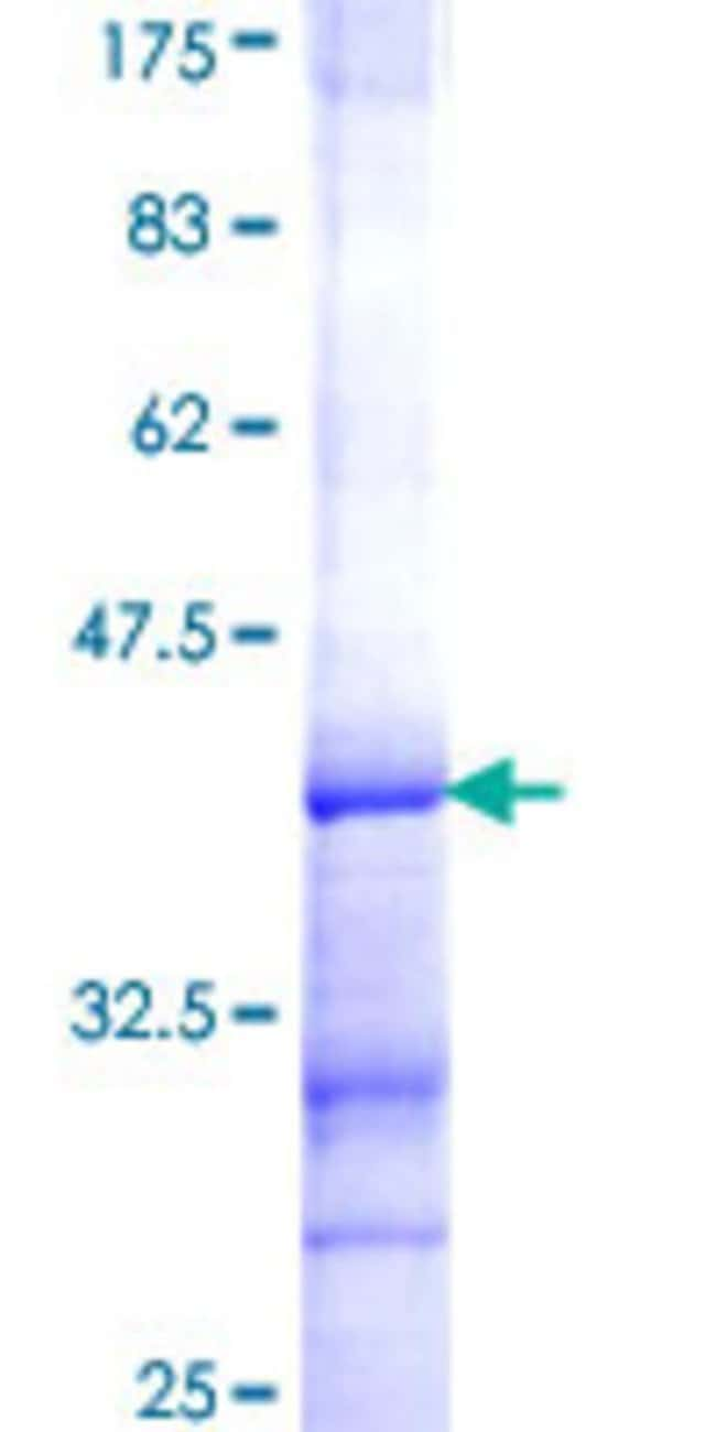 AbnovaHuman ACTR1A Partial ORF (NP_005727, 279 a.a. - 375 a.a.) Recombinant