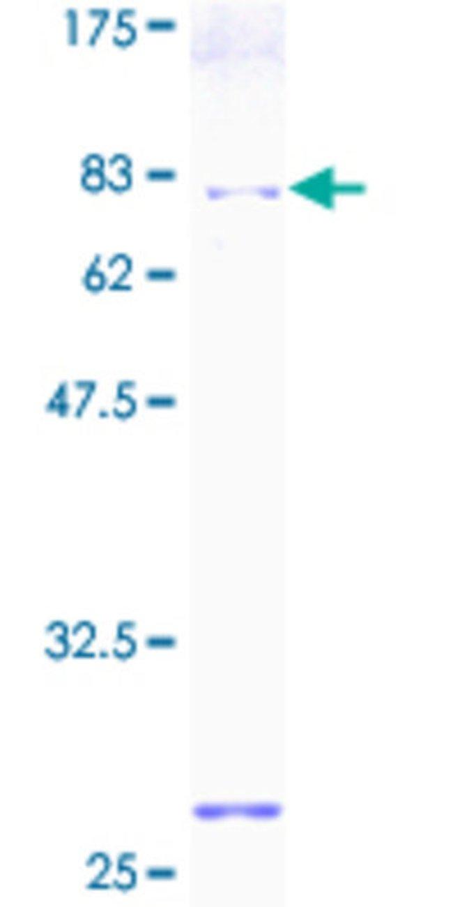 AbnovaHuman PDIA6 Full-length ORF (AAH01312, 1 a.a. - 440 a.a.) Recombinant