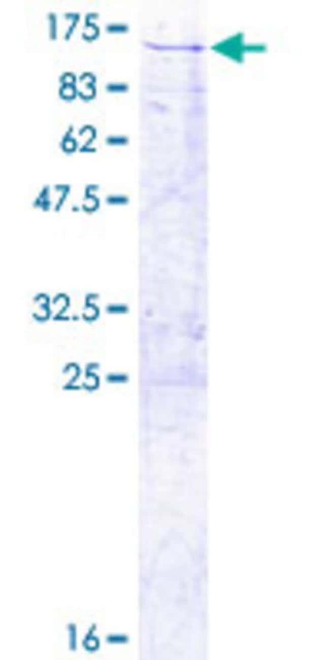 AbnovaHuman TRAP1 Full-length ORF (NP_057376.1, 1 a.a. - 704 a.a.) Recombinant