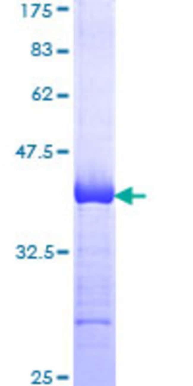 AbnovaHuman BCAP31 Partial ORF (NP_005736, 137 a.a. - 246 a.a.) Recombinant