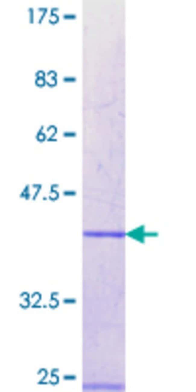 AbnovaHuman RBM12 Partial ORF (NP_006038.2, 834 a.a. - 932 a.a.) Recombinant