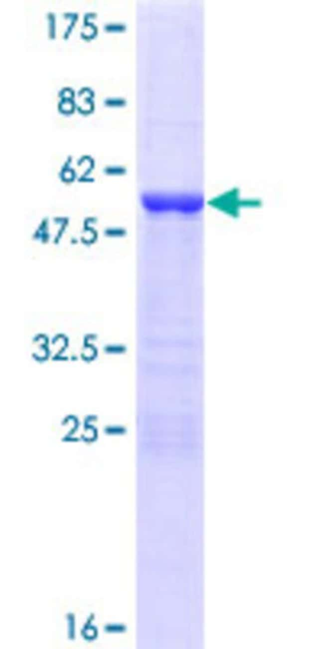 Abnova™Human YAF2 Full-length ORF (NP_005739.2, 1 a.a. - 180 a.a.) Recombinant Protein with GST-tag at N-terminal 25μg Abnova™Human YAF2 Full-length ORF (NP_005739.2, 1 a.a. - 180 a.a.) Recombinant Protein with GST-tag at N-terminal