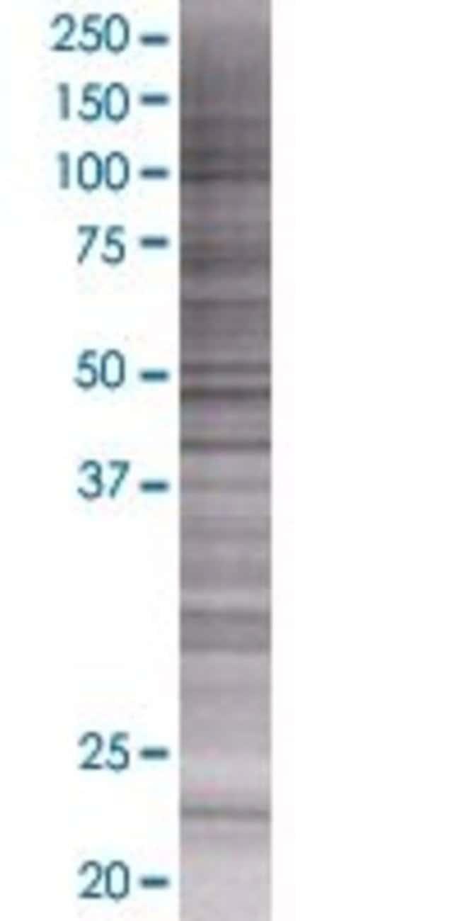 AbnovaARFRP1 293T Cell Transient Overexpression Lysate (Denatured) 100μL:Protein