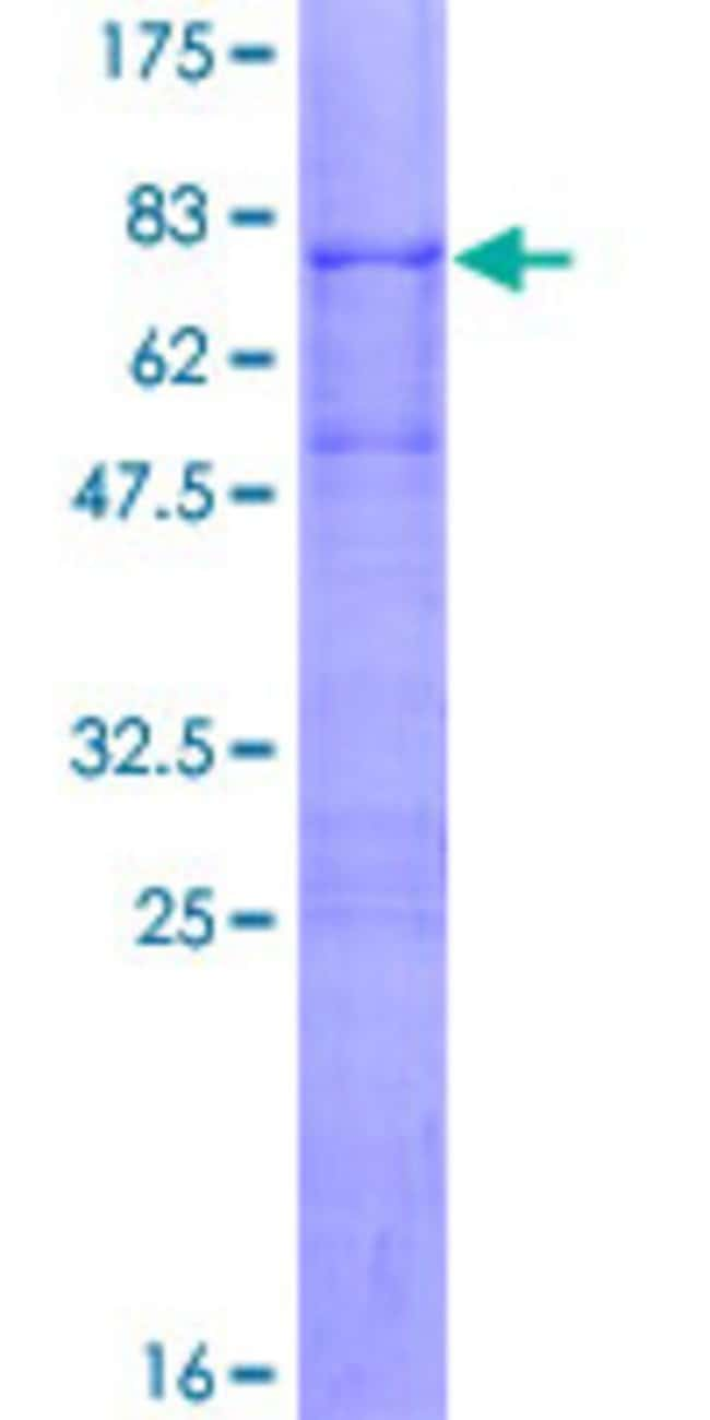 Abnova™Human TOB1 Full-length ORF (NP_005740.1, 1 a.a. - 345 a.a.) Recombinant Protein with GST-tag at N-terminal 25μg Abnova™Human TOB1 Full-length ORF (NP_005740.1, 1 a.a. - 345 a.a.) Recombinant Protein with GST-tag at N-terminal