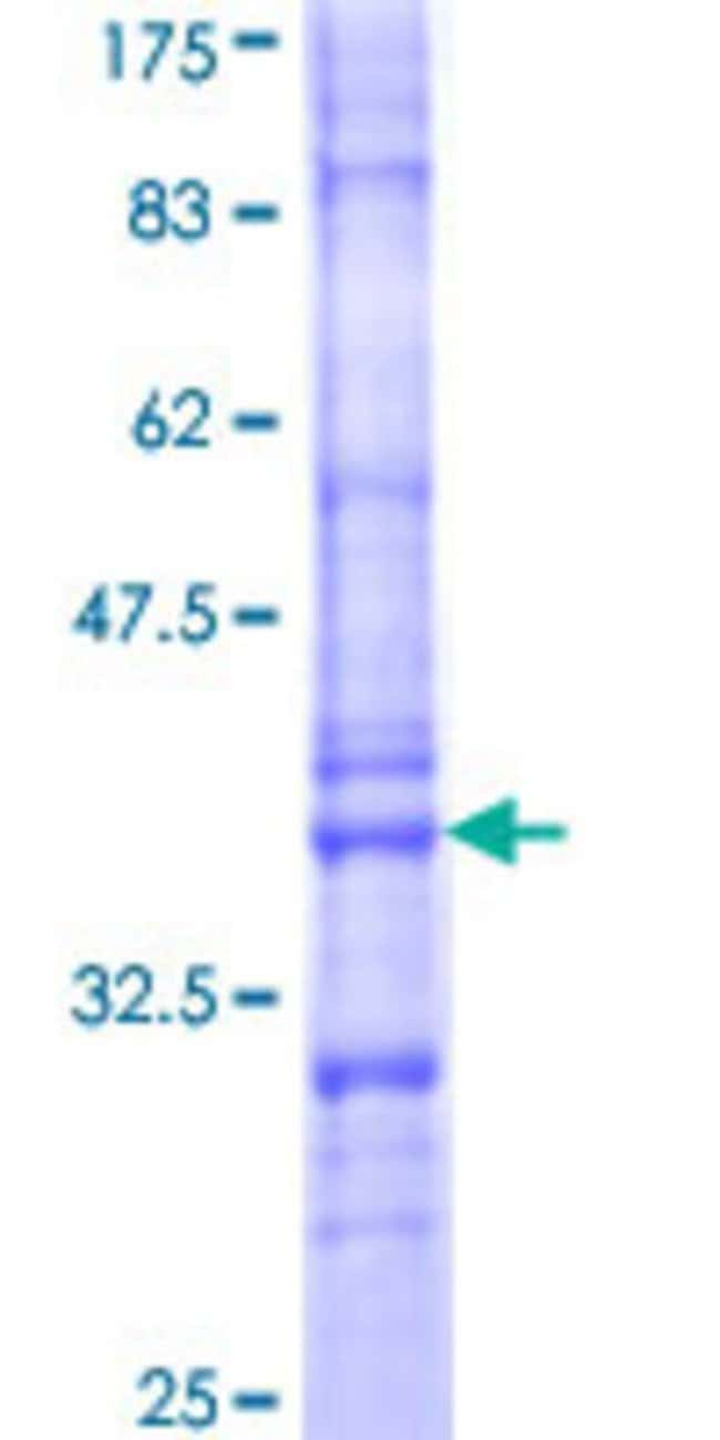 Abnova™ Human C4orf6 Partial ORF (NP_005741, 1 a.a. - 93 a.a.) Recombinant Protein with GST-tag at N-terminal 25μg Abnova™ Human C4orf6 Partial ORF (NP_005741, 1 a.a. - 93 a.a.) Recombinant Protein with GST-tag at N-terminal