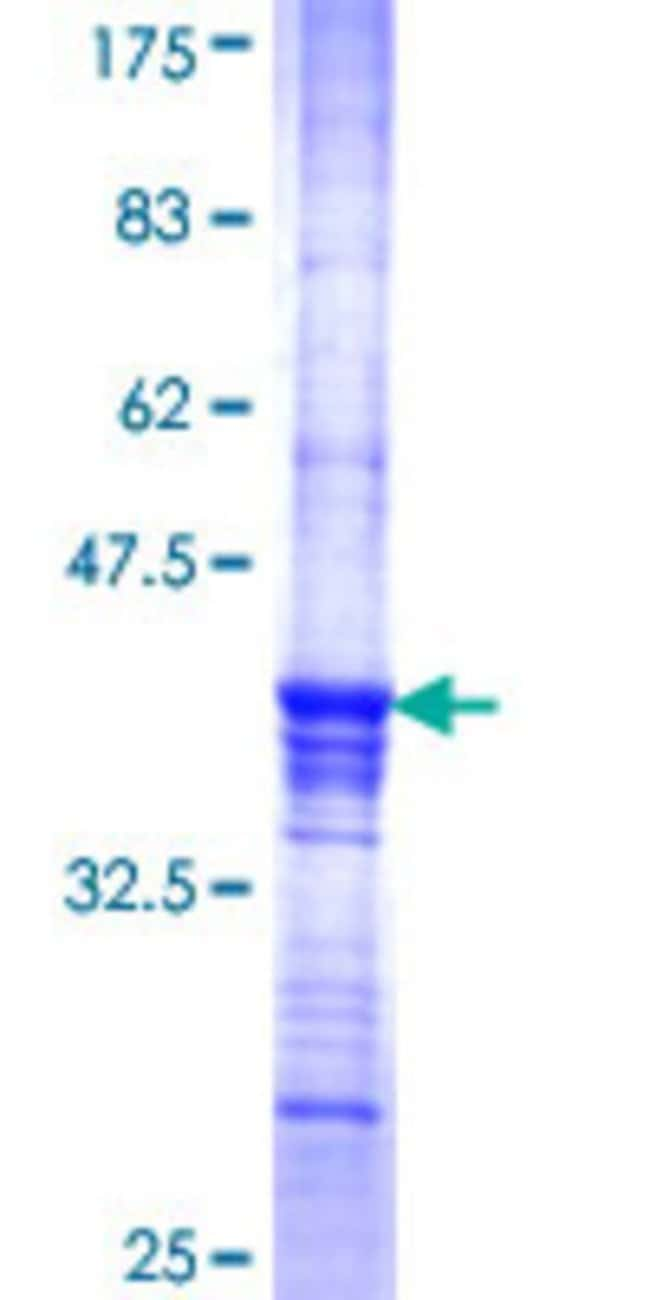 AbnovaHuman SFRS14 Partial ORF (NP_055699, 579 a.a. - 674 a.a.) Recombinant