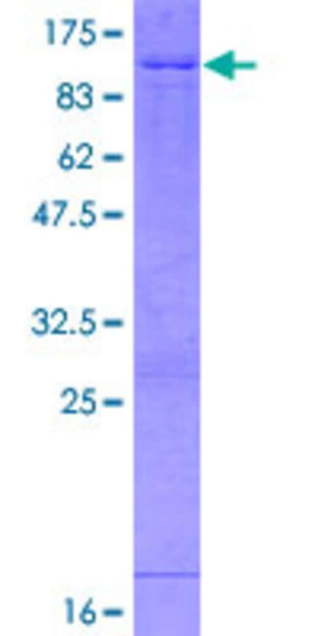 AbnovaHuman ABI2 Full-length ORF (NP_005750.4, 1 a.a. - 475 a.a.) Recombinant