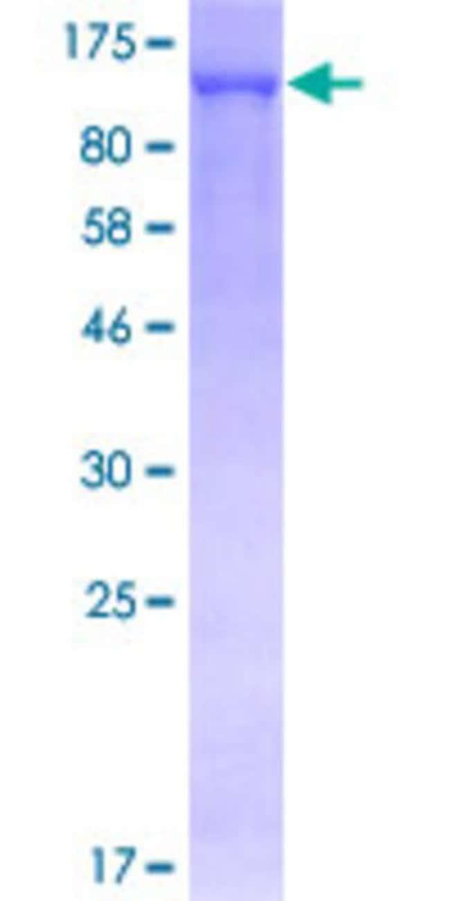 AbnovaHuman TRIM28 Full-length ORF (NP_005753.1, 1 a.a. - 835 a.a.) Recombinant