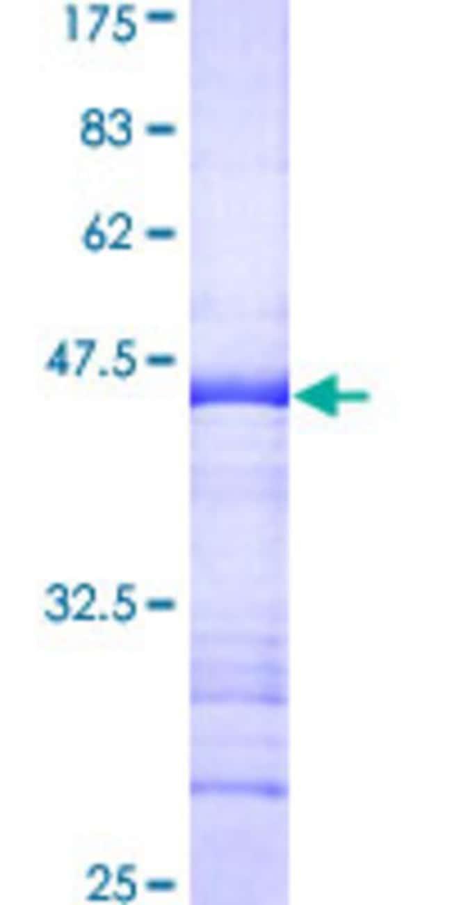 AbnovaHuman TRIM28 Partial ORF (AAH04978, 379 a.a. - 524 a.a.) Recombinant