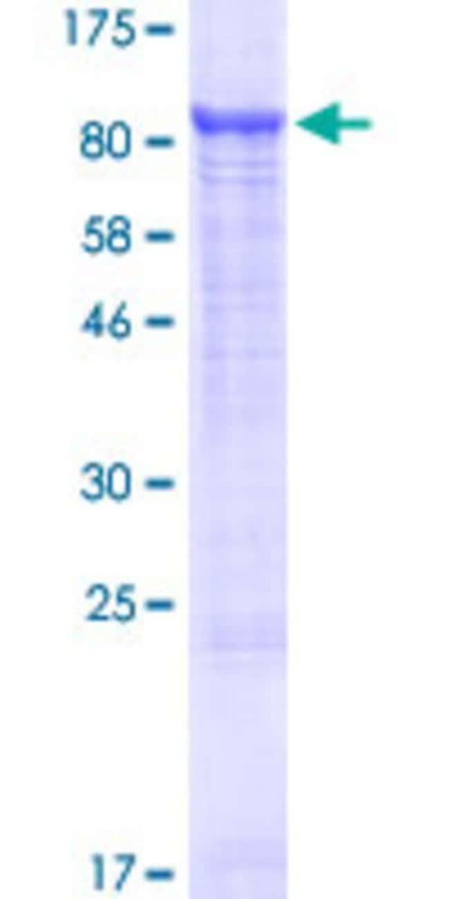 AbnovaHuman SLC25A13 Full-length ORF (NP_055066.1, 1 a.a. - 675 a.a.) Recombinant