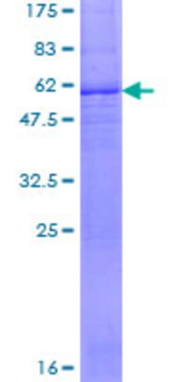 AbnovaHuman SLC25A15 Full-length ORF (NP_055067.1, 1 a.a. - 301 a.a.) Recombinant