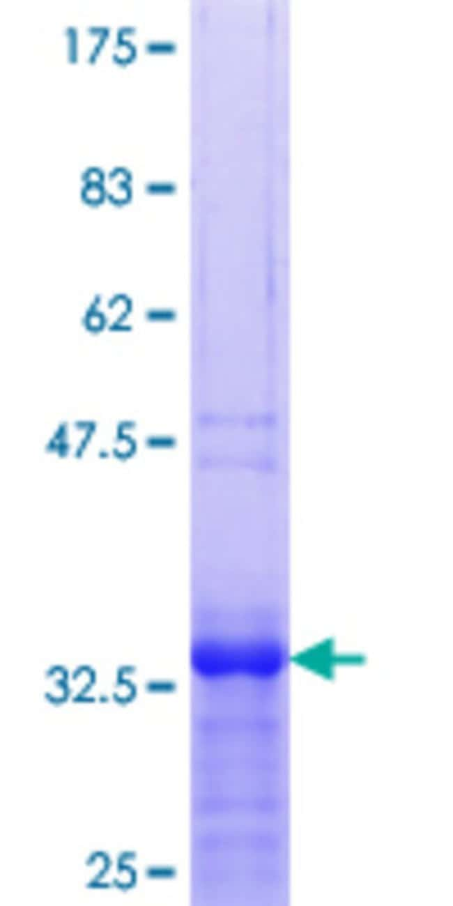 Abnova™Human ZNF256 Partial ORF (NP_005764.2, 521 a.a. - 627 a.a.) Recombinant Protein with GST-tag at N-terminal 25μg Abnova™Human ZNF256 Partial ORF (NP_005764.2, 521 a.a. - 627 a.a.) Recombinant Protein with GST-tag at N-terminal