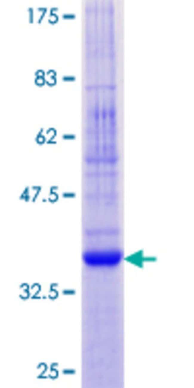 AbnovaHuman CNIH Full-length ORF (NP_005767.1, 1 a.a. - 144 a.a.) Recombinant