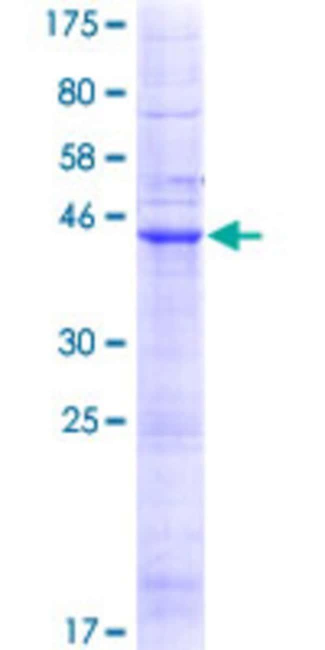 AbnovaHuman LHFP Full-length ORF (NP_005771.1, 1 a.a. - 200 a.a.) Recombinant