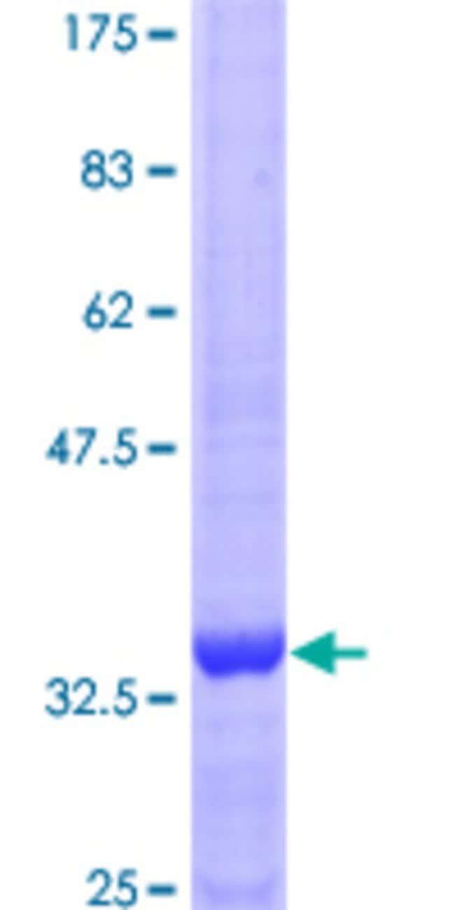 AbnovaHuman TNK2 Partial ORF (AAH08884, 21 a.a. - 120 a.a.) Recombinant