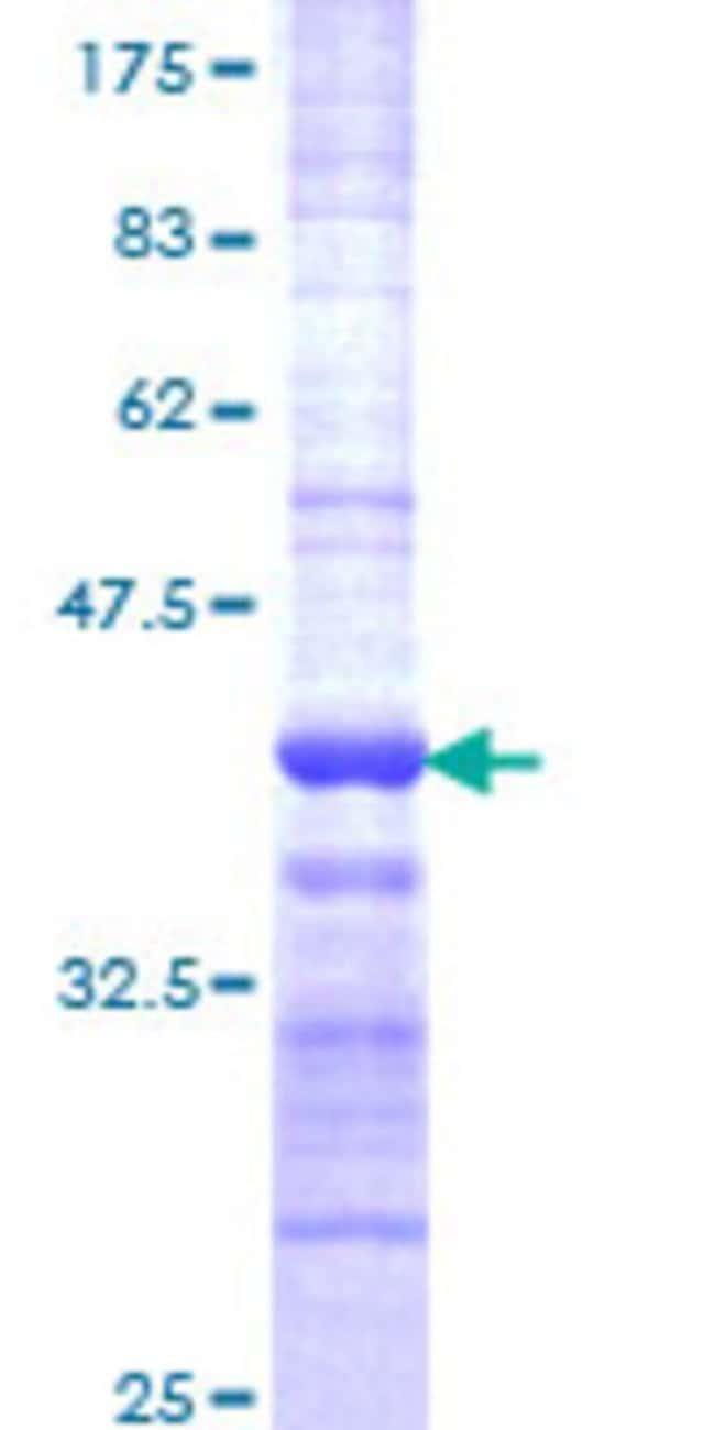 AbnovaHuman RNF41 Partial ORF (NP_005776, 218 a.a. - 317 a.a.) Recombinant