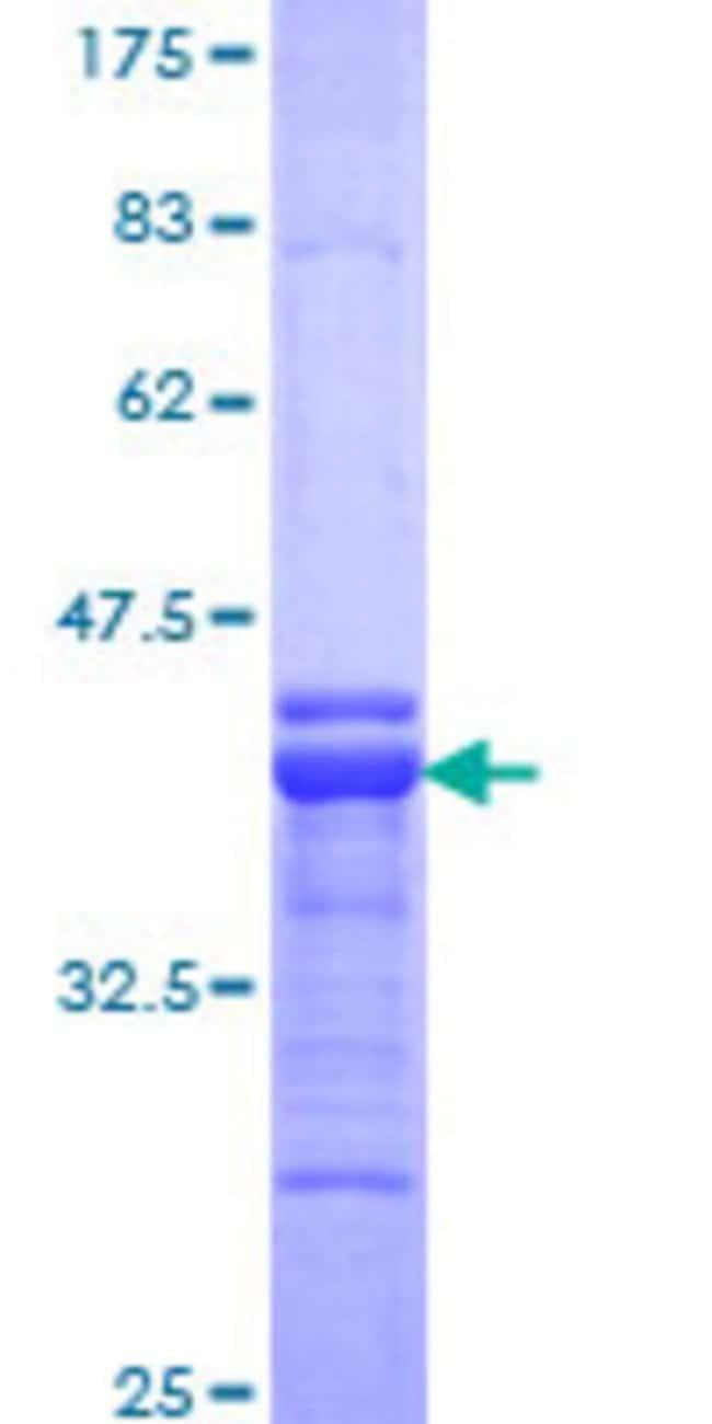AbnovaHuman SDCCAG33 Partial ORF (NP_005777, 619 a.a. - 717 a.a.) Recombinant