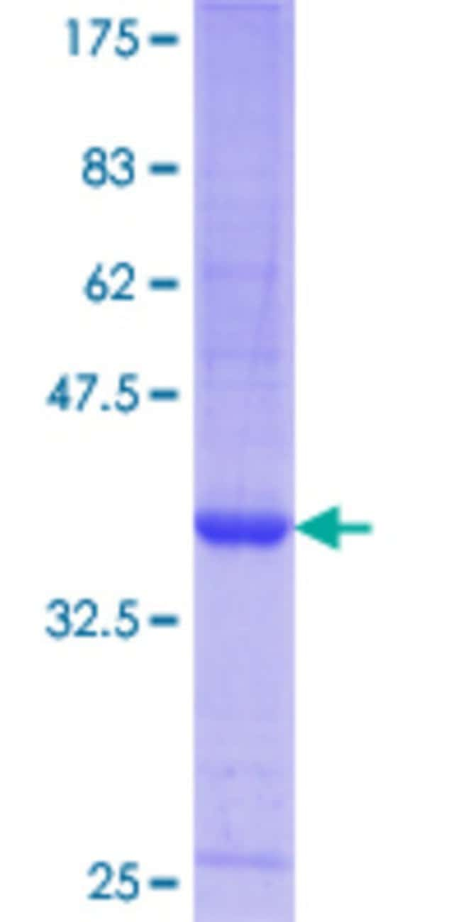 Abnova™Human GDF8 Partial ORF (NP_005250.1, 121 a.a. - 202 a.a.) Recombinant Protein with GST-tag at N-terminal 25μg Abnova™Human GDF8 Partial ORF (NP_005250.1, 121 a.a. - 202 a.a.) Recombinant Protein with GST-tag at N-terminal