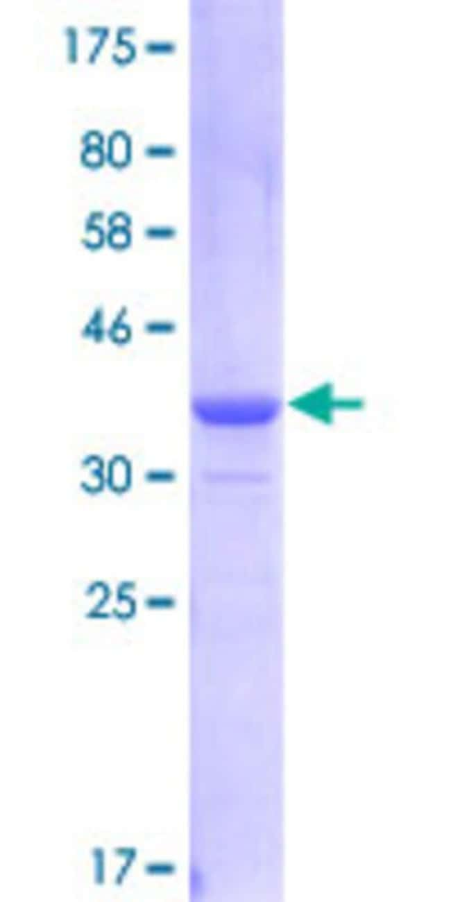 Abnova™Human GDI2 Partial ORF (NP_001485, 346 a.a. - 445 a.a.) Recombinant Protein with GST-tag at N-terminal 25μg Abnova™Human GDI2 Partial ORF (NP_001485, 346 a.a. - 445 a.a.) Recombinant Protein with GST-tag at N-terminal