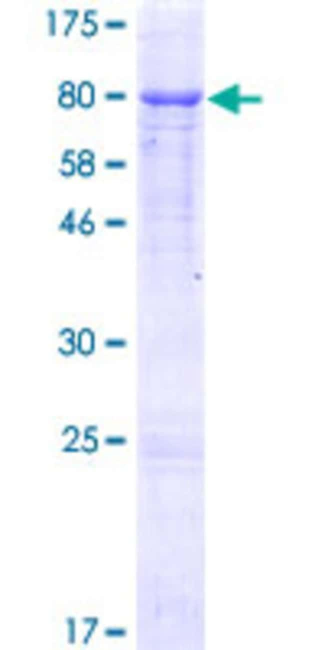 Abnova™Human GGT1 Full-length ORF (NP_005256.2, 1 a.a. - 569 a.a.) Recombinant Protein with GST-tag at N-terminal 10μg Abnova™Human GGT1 Full-length ORF (NP_005256.2, 1 a.a. - 569 a.a.) Recombinant Protein with GST-tag at N-terminal