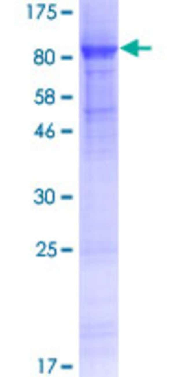 Abnova™Human GJA8 Full-length ORF (AAI46508.1, 1 a.a. - 433 a.a.) Recombinant Protein with GST-tag at N-terminal 10μg Abnova™Human GJA8 Full-length ORF (AAI46508.1, 1 a.a. - 433 a.a.) Recombinant Protein with GST-tag at N-terminal
