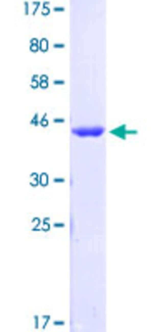 Abnova™Human GLI1 Partial ORF (AAH13000.1, 401 a.a. - 500 a.a.) Recombinant Protein with GST-pstS1 tag at N-terminal 10μg Abnova™Human GLI1 Partial ORF (AAH13000.1, 401 a.a. - 500 a.a.) Recombinant Protein with GST-pstS1 tag at N-terminal