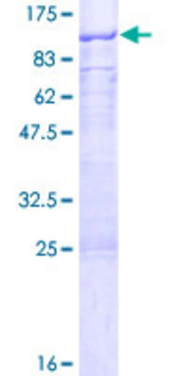 Abnova™Human GNL1 Full-length ORF (NP_005266.2, 1 a.a. - 607 a.a.) Recombinant Protein with GST-tag at N-terminal 25μg Abnova™Human GNL1 Full-length ORF (NP_005266.2, 1 a.a. - 607 a.a.) Recombinant Protein with GST-tag at N-terminal