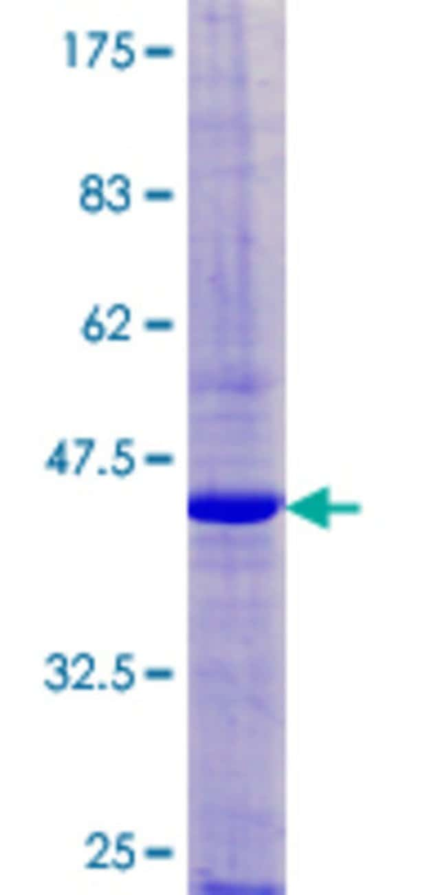 Abnova™Human GP9 Full-length ORF (AAH30229.1, 1 a.a. - 177 a.a.) Recombinant Protein with GST-tag at N-terminal 10μg Abnova™Human GP9 Full-length ORF (AAH30229.1, 1 a.a. - 177 a.a.) Recombinant Protein with GST-tag at N-terminal