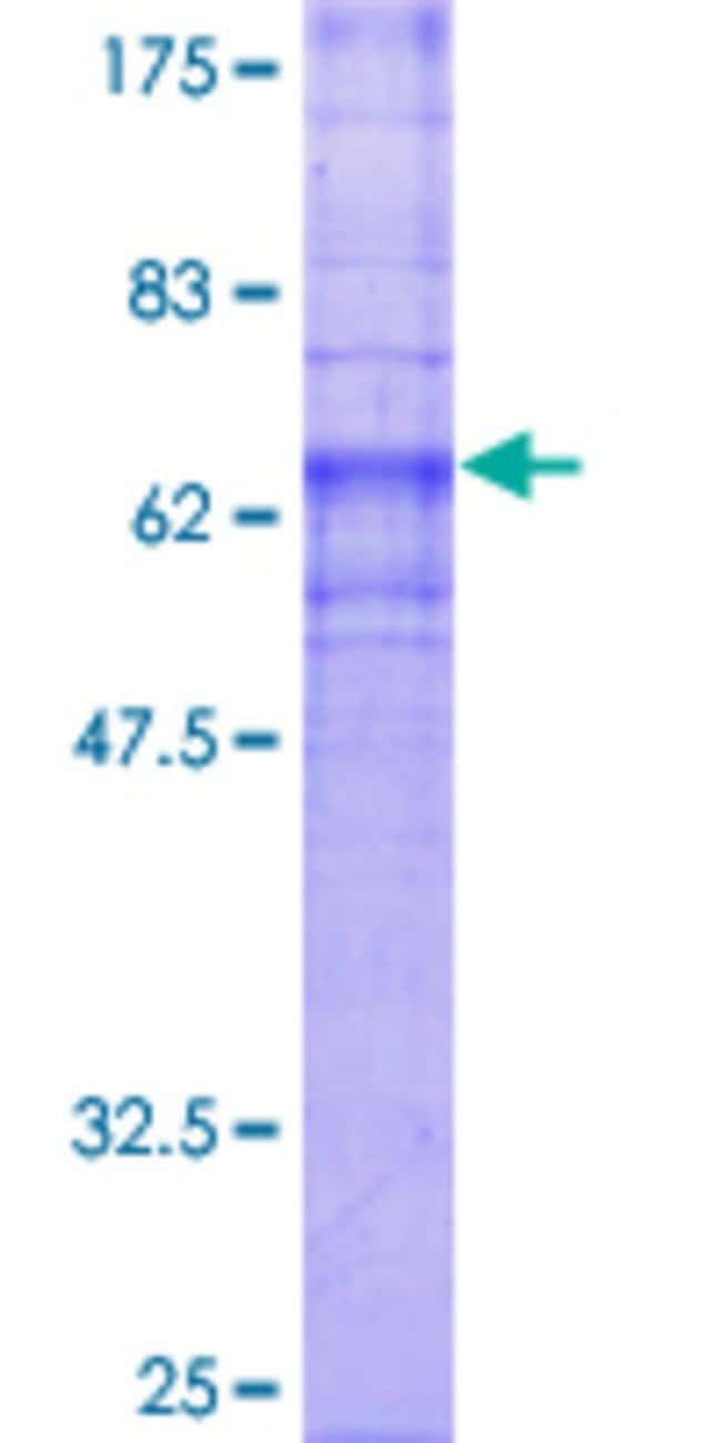 Abnova™ Human GPR4 Full-length ORF (NP_005273.1, 1 a.a. - 362 a.a.) Recombinant Protein with GST-tag at N-terminal 25μg Abnova™ Human GPR4 Full-length ORF (NP_005273.1, 1 a.a. - 362 a.a.) Recombinant Protein with GST-tag at N-terminal