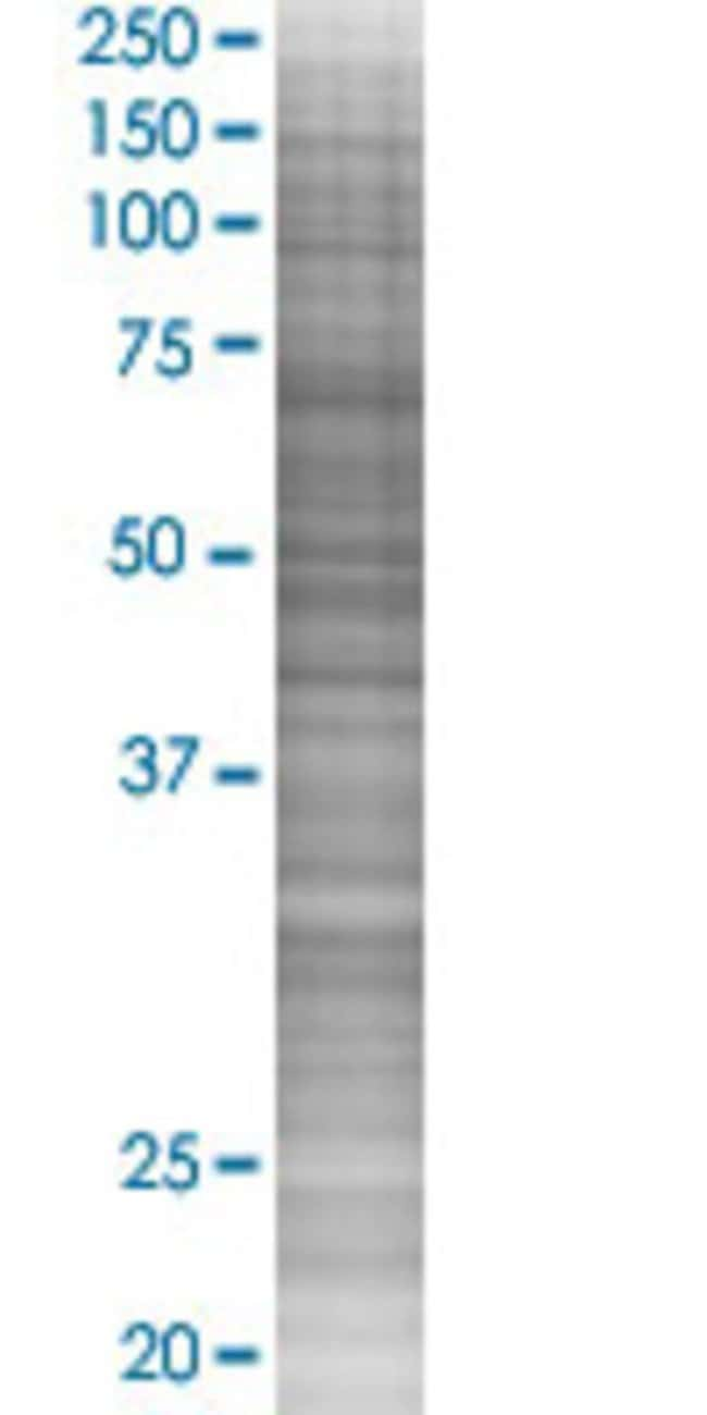 Abnova MCHR1 293T Cell Transient Overexpression Lysate (Denatured) 100µL:Life