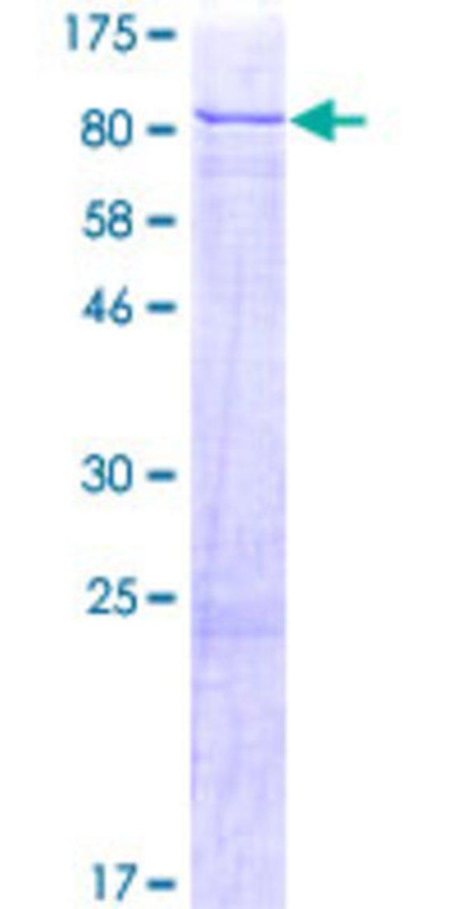 Abnova Human GRK6 Full-length ORF (AAH17272.1, 1 a.a. - 589 a.a.) Recombinant