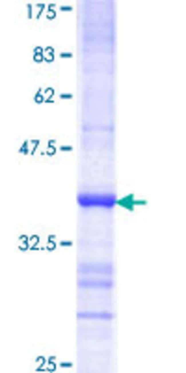 Abnova™ Human GRK6 Partial ORF (AAH17272, 71 a.a. - 170 a.a.) Recombinant Protein with GST-tag at N-terminal 10μg Abnova™ Human GRK6 Partial ORF (AAH17272, 71 a.a. - 170 a.a.) Recombinant Protein with GST-tag at N-terminal