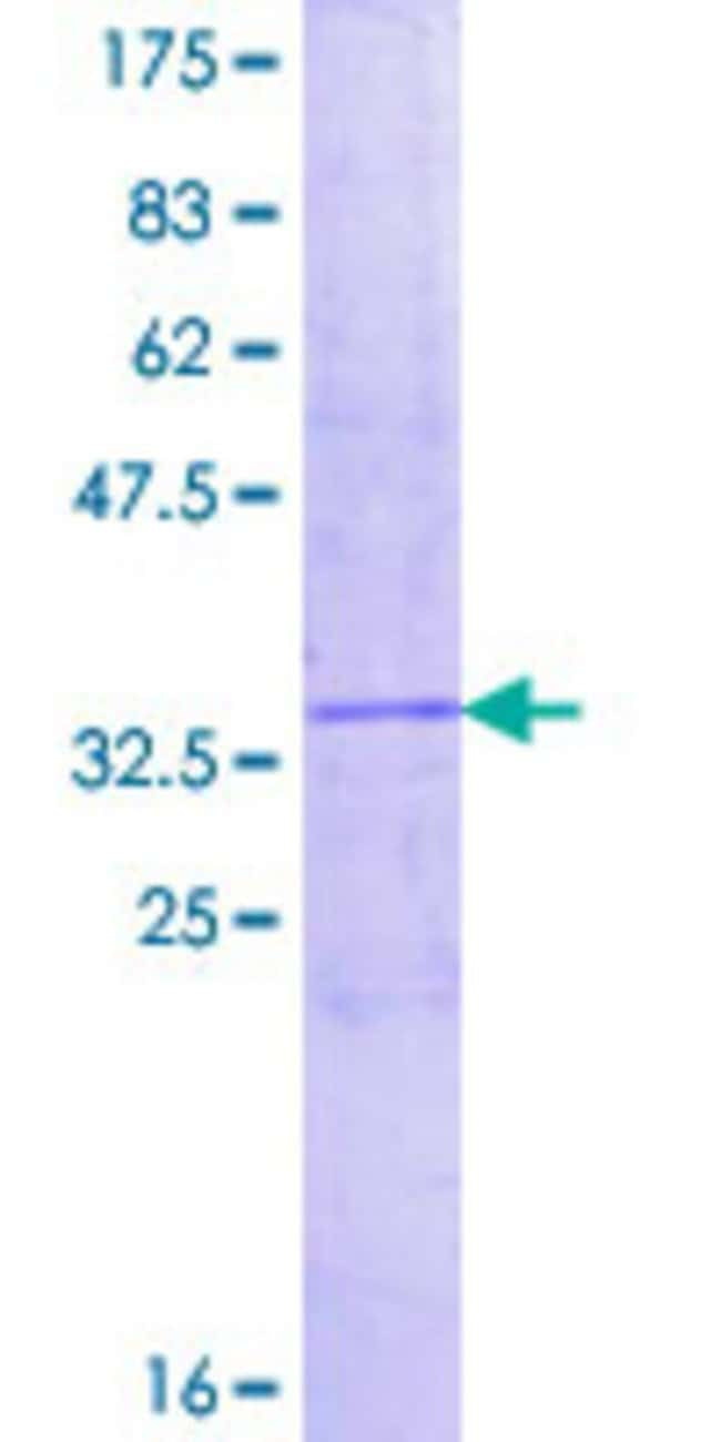 Abnova™Human CXCL1 Full-length ORF (NP_001502.1, 1 a.a. - 107 a.a.) Recombinant Protein with GST-tag at N-terminal 10μg Abnova™Human CXCL1 Full-length ORF (NP_001502.1, 1 a.a. - 107 a.a.) Recombinant Protein with GST-tag at N-terminal