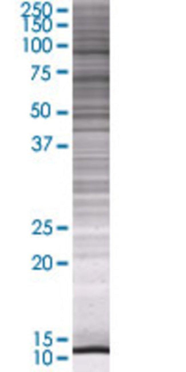 Abnova GSN 293T Cell Transient Overexpression Lysate (Denatured) 100µL:Life