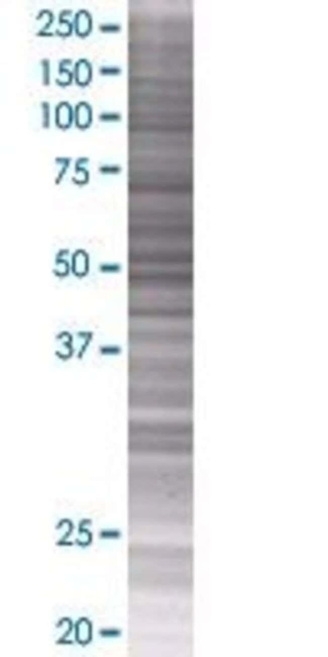 Abnova GSR 293T Cell Transient Overexpression Lysate (Denatured) 100µL:Life