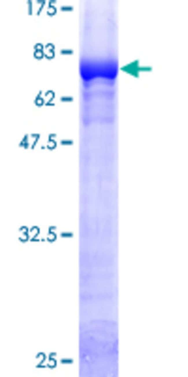 Abnova Human GSS Full-length ORF (AAH07927, 1 a.a. - 474 a.a.) Recombinant