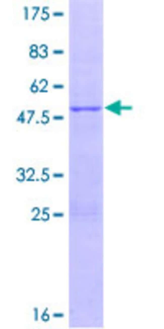 Abnova Human GSTM1 Full-length ORF (AAH24005.1, 1 a.a. - 181 a.a.) Recombinant
