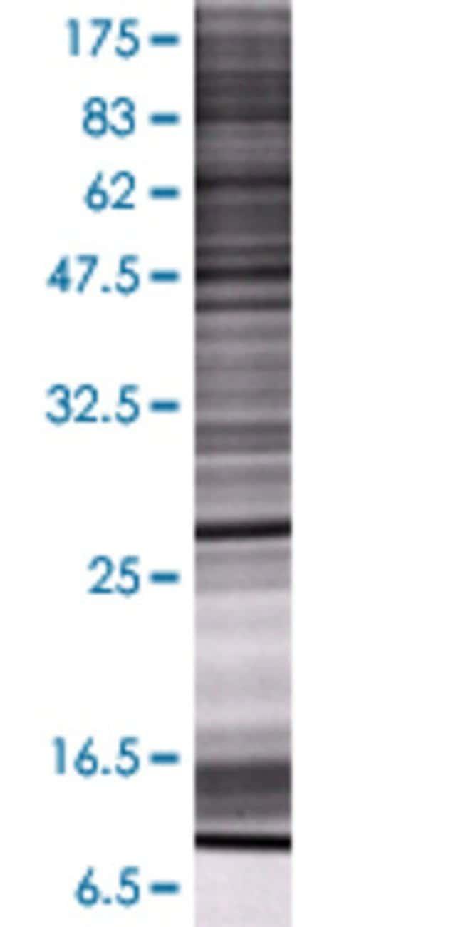 Abnova GSTM4 293T Cell Transient Overexpression Lysate (Denatured) 100µL:Life