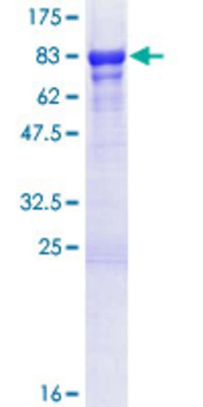 Abnova™Human GTF2E1 Full-length ORF (NP_005504.2, 1 a.a. - 439 a.a.) Recombinant Protein with GST-tag at N-terminal 25μg Abnova™Human GTF2E1 Full-length ORF (NP_005504.2, 1 a.a. - 439 a.a.) Recombinant Protein with GST-tag at N-terminal
