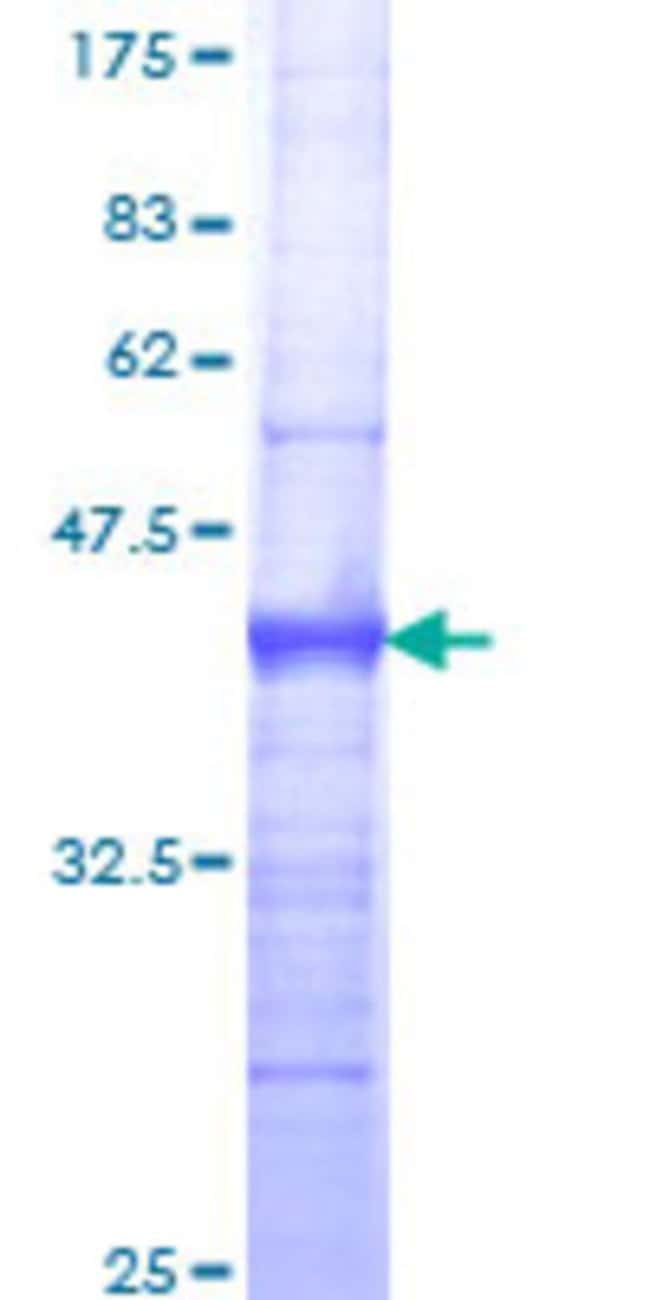 Abnova™Human GTF2H3 Partial ORF (NP_001507, 1 a.a. - 110 a.a.) Recombinant Protein with GST-tag at N-terminal 10μg Abnova™Human GTF2H3 Partial ORF (NP_001507, 1 a.a. - 110 a.a.) Recombinant Protein with GST-tag at N-terminal