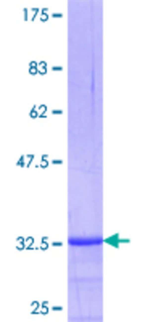 AbnovaHuman DHRS2 Partial ORF (NP_878912.1, 229 a.a. - 300 a.a.) Recombinant