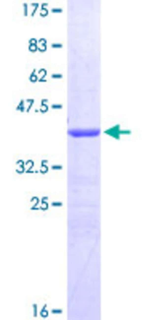 Abnova™Human CALCRL Partial ORF (NP_005786.1, 23 a.a. - 132 a.a.) Recombinant Protein with GST-tag at N-terminal 25μg Abnova™Human CALCRL Partial ORF (NP_005786.1, 23 a.a. - 132 a.a.) Recombinant Protein with GST-tag at N-terminal