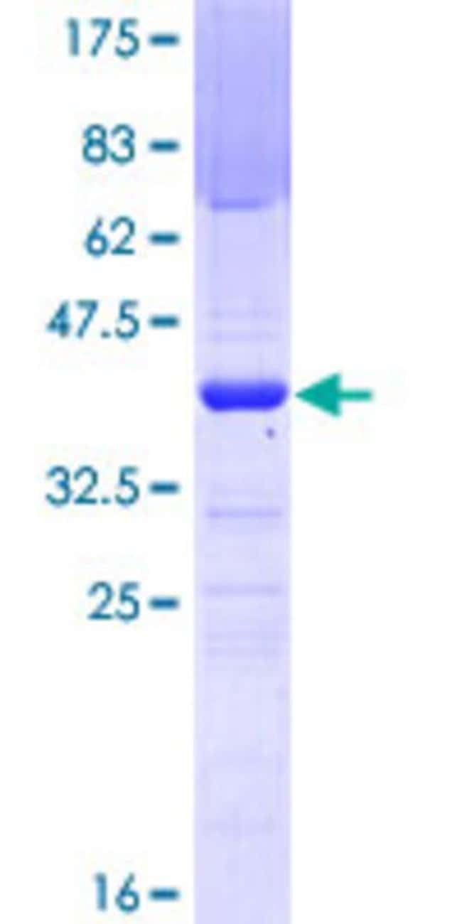 AbnovaHuman RFP2 Partial ORF (NP_005789, 1 a.a. - 100 a.a.) Recombinant