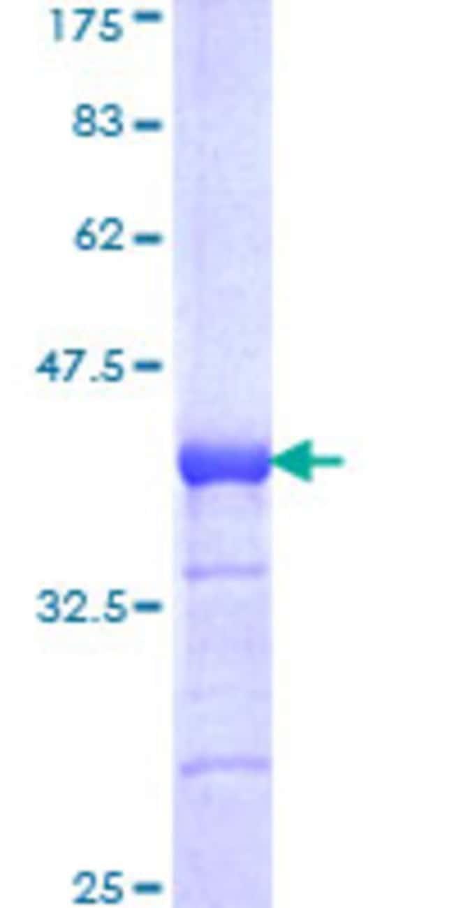 AbnovaHuman TOPORS Partial ORF (NP_005793, 98 a.a. - 205 a.a.) Recombinant