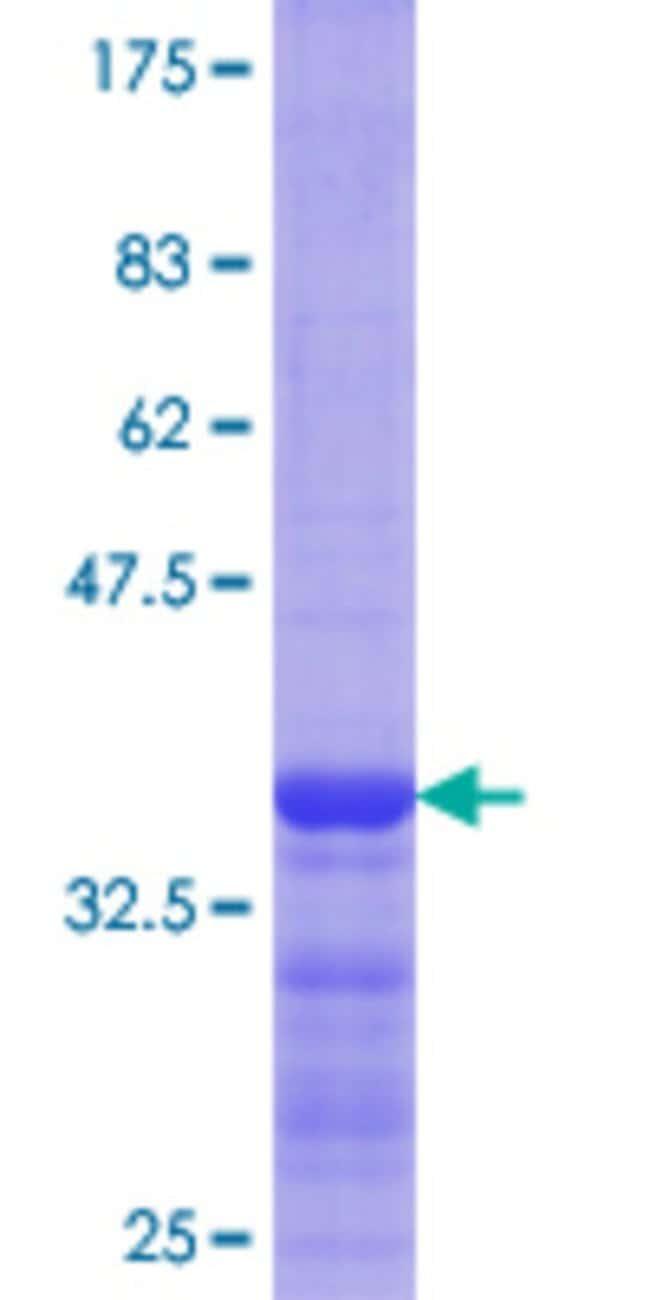 AbnovaHuman FLOT1 Partial ORF (NP_005794.1, 126 a.a. - 225 a.a.) Recombinant