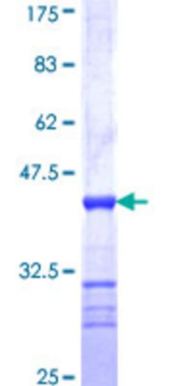 AbnovaHuman SSX3 Partial ORF (NP_066294, 1 a.a. - 100 a.a.) Recombinant