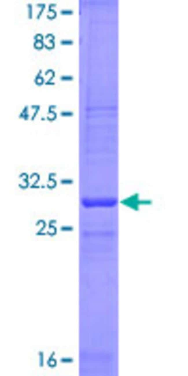 Abnova™Human KLRG1 Partial ORF (NP_005801, 57 a.a. - 119 a.a.) Recombinant Protein with GST-tag at N-terminal 10μg Abnova™Human KLRG1 Partial ORF (NP_005801, 57 a.a. - 119 a.a.) Recombinant Protein with GST-tag at N-terminal