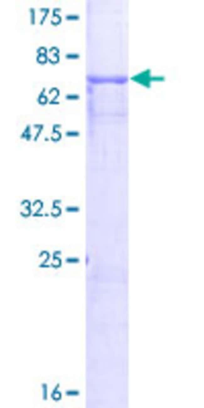 AbnovaHuman GPA33 Full-length ORF (NP_005805.1, 1 a.a. - 319 a.a.) Recombinant
