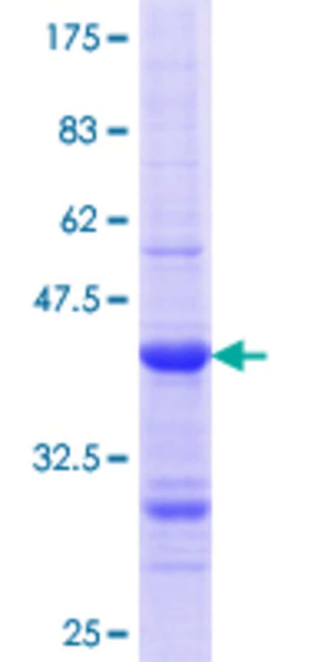AbnovaHuman GPA33 Partial ORF (NP_005805.1, 26 a.a. - 125 a.a.) Recombinant