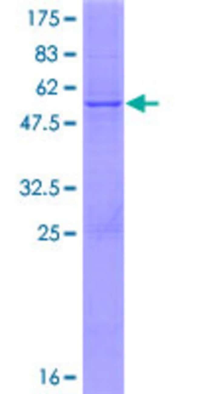 AbnovaHuman COQ7 Full-length ORF (NP_057222.2, 1 a.a. - 217 a.a.) Recombinant